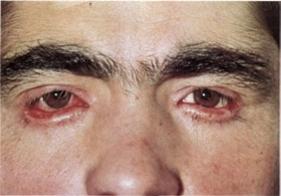 Зрение после операции у детей